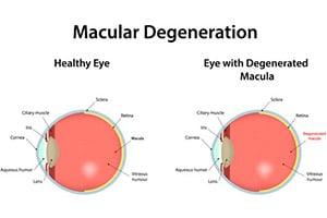 Stem Cell Treatment For Macular Degeneration Amd